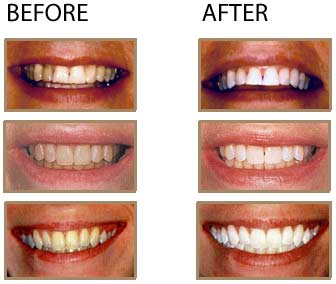 Teeth whitening trays from dentist before and after